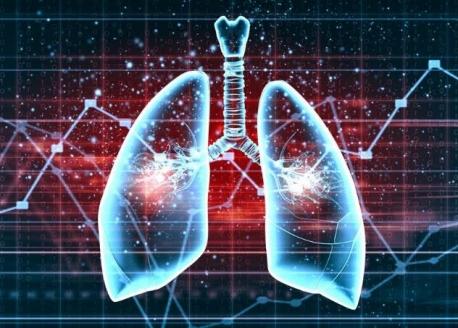世界慢阻肺日 提醒大家关注肺部健康